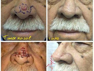 Dermatología estética-638568