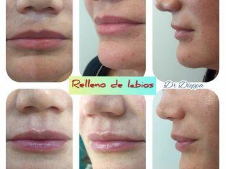 Aumento de labios - 640404