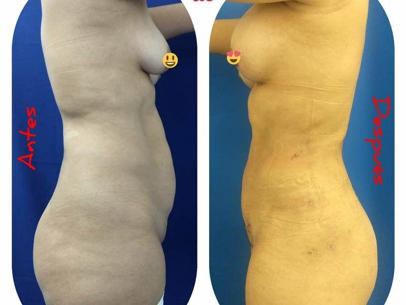 Cirugía Plástica Dieppa