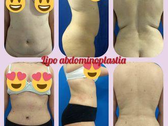 Abdominoplastia - 641801