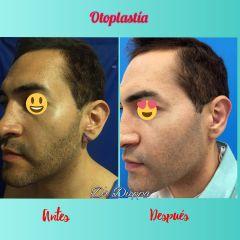 Cirugía Plástica Dieppa - Otoplastia