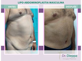 Abdominoplastia - 663844
