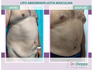 Lipoabdomindoplastia - Cirugía Plástica Dieppa