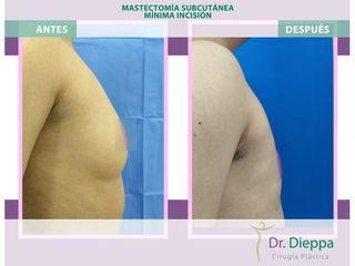 Mastectomía subcutánea - Cirugía Plástica Dieppa