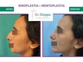 Rinoplastia-776503