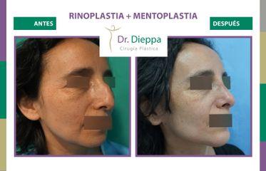 Rinoplastia + mentoplastia - Cirugía Plástica Dieppa