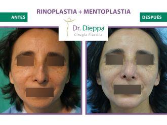 Rinoplastia-776506