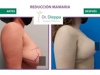 Reducción mamaria-776508