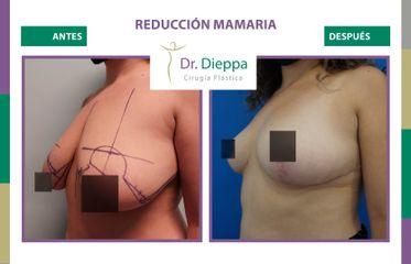 Reducción mamaria - Cirugía Plástica Dieppa