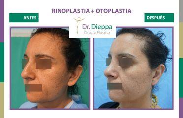 Rinoplastia + Otoplastia - Cirugía Plástica Dieppa