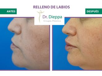 Aumento de labios-776516