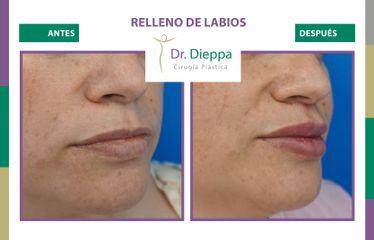 Aumento de labios - Cirugía Plástica Dieppa