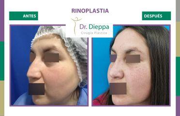 Rinoplastia - Cirugía Plástica Dieppa