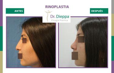 Rinoplastia - Dr Dieppa