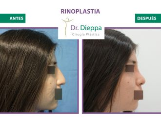 Rinoplastia-786342