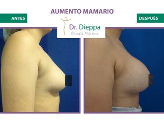 Aumento mamario-786346