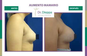 Aumento Mamario - Dr Dieppa