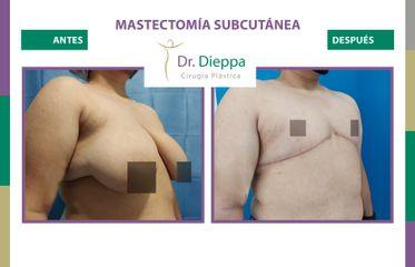 Mastectomía subcutánea - Dr Dieppa