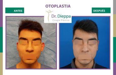 Otoplastia - Dr Dieppa