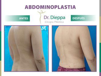 Abdominoplastia-788674