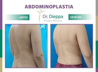 Abdominoplastia - Cirugía Plástica Dieppa