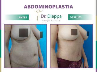 Abdominoplastia-788675