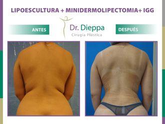 Lipoescultura-788686