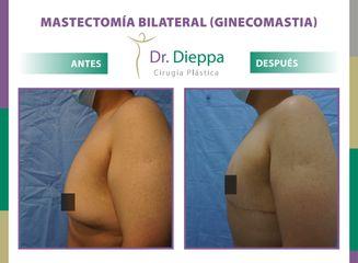 Mastectomía bilateral (Ginecomastia) Dr. Dieppa