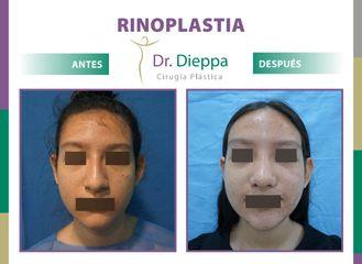 Rinoplastia Dr Dieppa