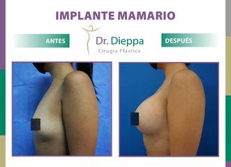 Aumento Mamario Dr Dieppa