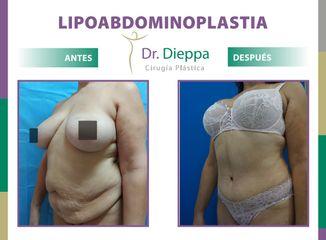 Lipo-abdominoplastia Dr. Dieppa