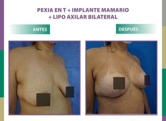 Pexia en T + implante mamario + lipo axilar bilateral Dr. Dieppa