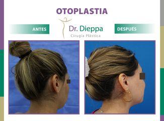 Otoplastia Dr Dieppa