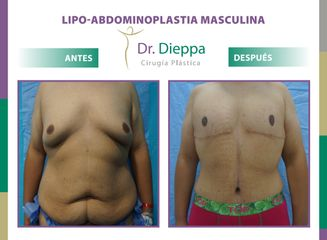 Abdominoplastia Masculina Dr. Dieppa