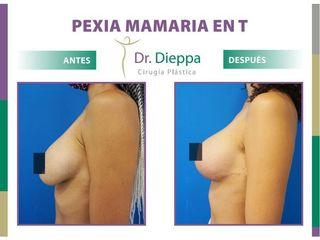 Mastopexia en T- Dr. Dieppa