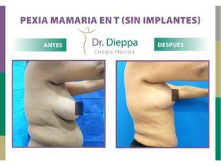 Mastopexia en T (Sin implantes) - Dr. Dieppa