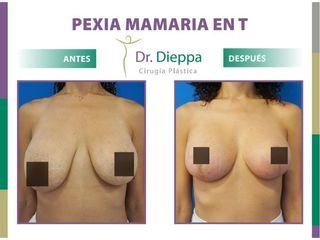 Mastopexia en T - Dr. Dieppa