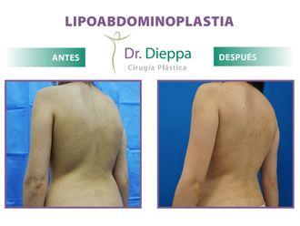 Abdominoplastia - 796236