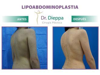 Abdominoplastia - 796240