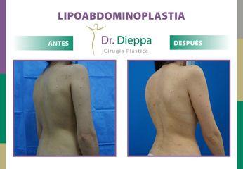 Lipo-abdominoplastia - Dr. Dieppa