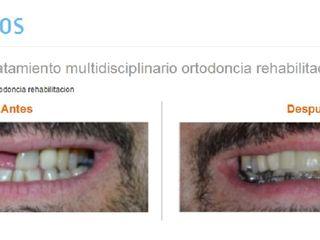 Tratamiento multidisciplinario ortodoncia rehabilitacion