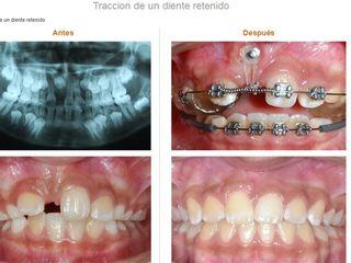 Traccion de un diente retenido