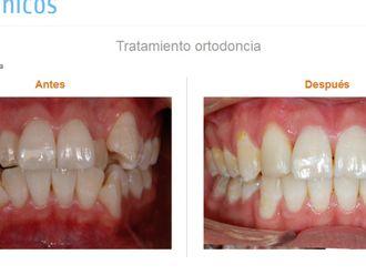 Ortodoncia invisible-575412