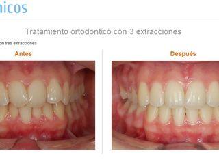 Tratamiento ortodontico con 3 extracciones