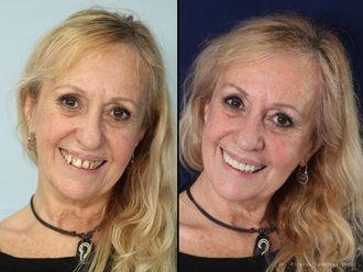 Implantes dentales - 548256