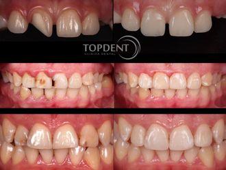 Endodoncia-548398
