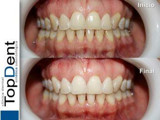 Blanquear dientes-551238