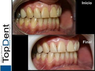 Blanquear dientes-551240
