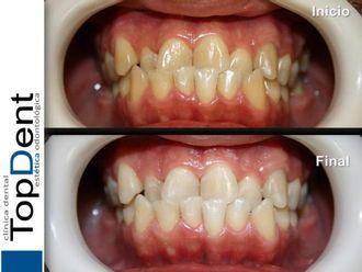 Blanquear dientes-551241