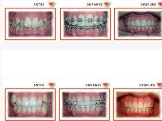 Ortodoncia - 575298